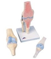 SECTIONAL KNEE JOINT MODEL , 3-PART